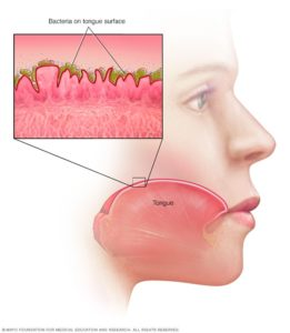 Illustration of The Relationship Between Bad Breath And Intestinal Health?