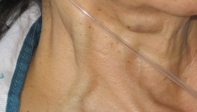 Illustration of Lumps In The Neck Accompanied By Thumping Chest.?