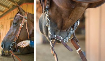 Illustration of To Attach Stirrup Should You Expand Your Jaw Or Pull Your Teeth?
