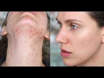 Illustration of Pimples And Spots Appear After Detox The Face In A Beauty Salon.?
