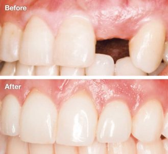 Illustration of Can The Front Teeth Be Pulled … Grow Again Or Not?