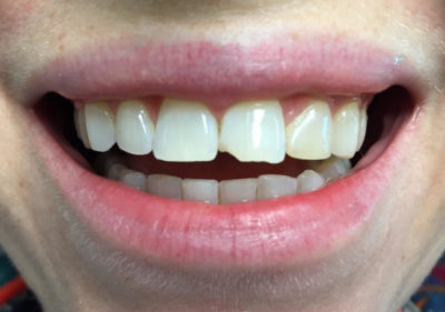Illustration of A Partially Fractured Front Tooth.?