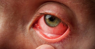 Illustration of How To Get Well From Eye Irritation And Infection.?