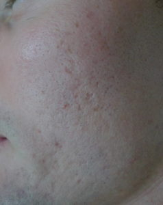 Illustration of Acne Reappears After A Few Months Of Recovery.?