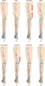 Illustration of Leg Bones Are Not Connected Properly After A Fracture.?