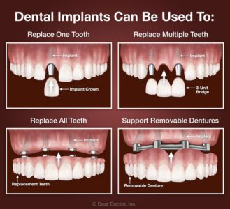 Illustration of Requirements For Dental Implants.?