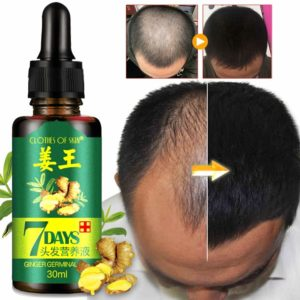 Illustration of Can I Use Hair Growth Medicine?