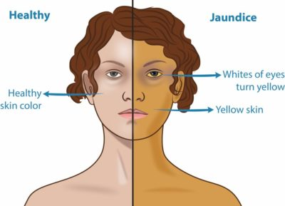 Illustration of Yellow Skin And Associated Liver Disorders?