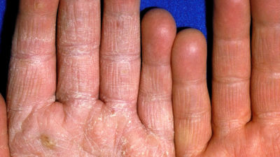 Illustration of Treatment For Fungal Infections Of The Skin Of The Hands.?