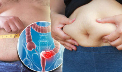 Illustration of The Stomach Feels Bloated And Painful If Pressed After A Caesarean Section.?