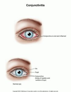 Illustration of Treatment And Transmission Of Red Eye?