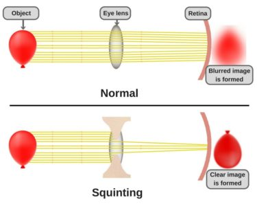 Illustration of Why Do You Squint?