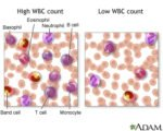 Leukocytes Are High In Lab Results?