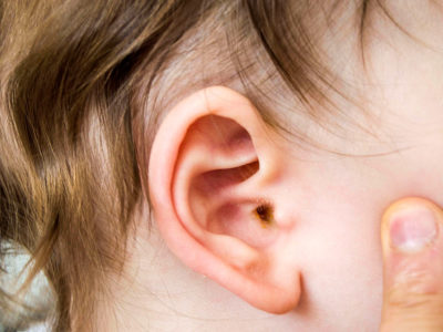 Illustration of Piercing In The Baby's Ear Continues To Discharge?
