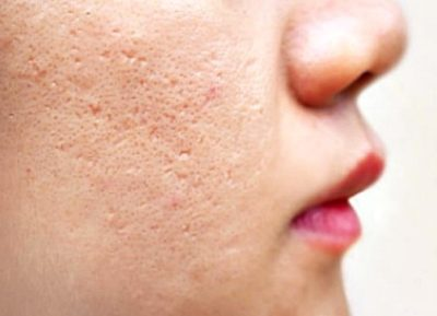 Illustration of Does Benzoyl Peroxide In Acne Medicine Make Acne Scars Become Blackened?