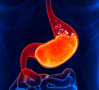 Illustration of The Stomach Feels Hot, The Heat And The Upper Part Are Enlarged And The Lower Abdomen Is Rather Hard.?