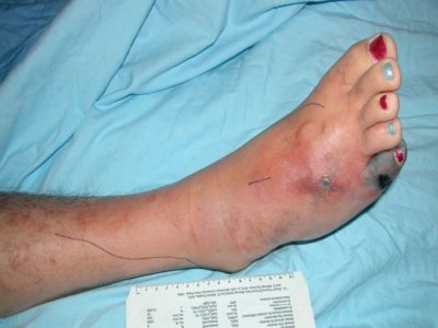 Illustration of Amoxicillin For The Treatment Of Foot Infections.?