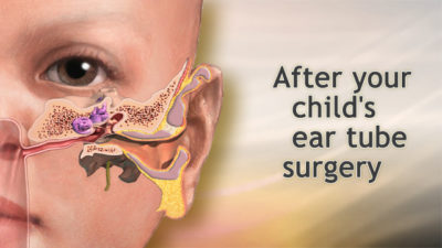 Illustration of Clear Yellowish Discharge After The Eardrum Surgery?