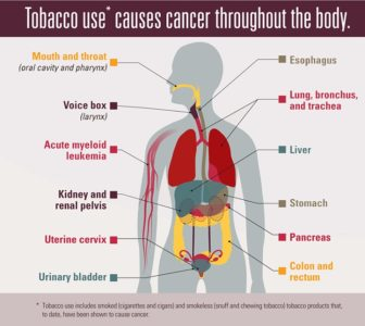 Illustration of Danger That Can Be Caused By Smoking?