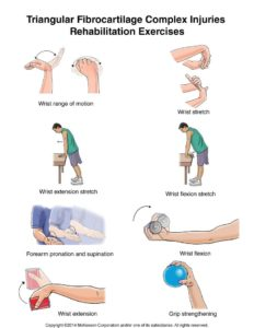 Illustration of Exercise To Strengthen The Wrist After A Fractured Hand?