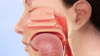 Illustration of Are Tonsils And Sinuses Connected?