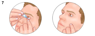 Illustration of Use Of Eye Drops And Eye Ointment Together?