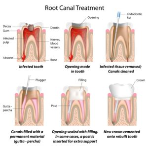 Illustration of How To Deal With Pain When Treating Root Canals?