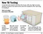 Lab Results In Tuberculosis Sufferers.?