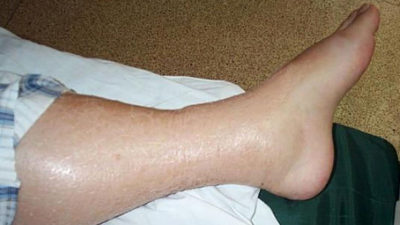Illustration of Swelling Of The Legs After The Accident?