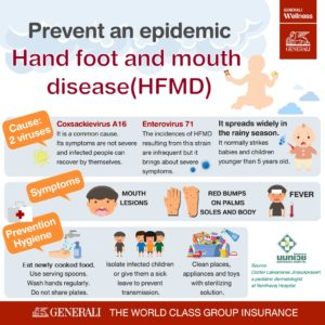 Illustration of How To Prevent Hand Foot And Mouth Disease (HFMD)?