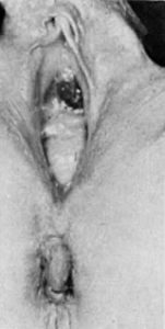 Illustration of The Appearance Of Mass Resembles Flesh From Inside The Vagina?