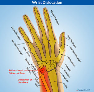 Illustration of How To Deal With Dislocations On The Wrist That Have Passed 1 Month?