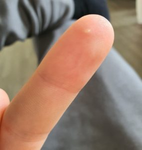 Illustration of Whitish Spots On The Hands Are Painful And Hot To The Back After Washing?