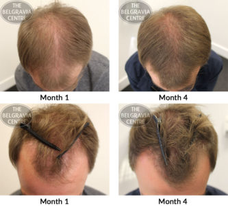 Illustration of Hair Growth Problems?