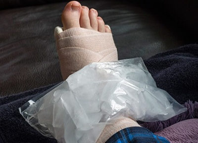 Illustration of Swollen Feet After Falling, Whether The Bandage Should Be Removed While Sleeping?