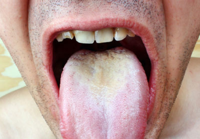 Illustration of Bitter Taste On The Tongue During Oral Sex After Using Magic Wipes?