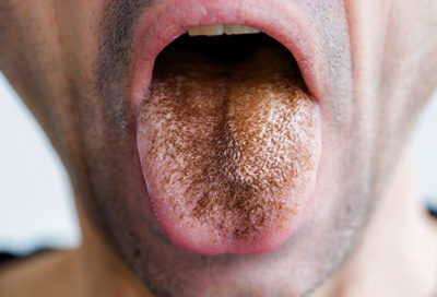 Illustration of Brownish Spots Appear On The Tip Of The Tongue, Is It Dangerous?