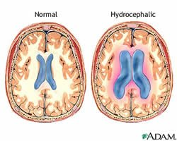 Illustration of Hydrocephalus In Adults?