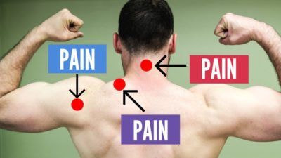 Illustration of How To Deal With Neck And Shoulder Injuries?