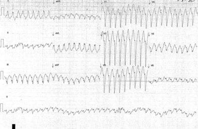 Illustration of How To Deal With Tachycardia Since Adolescence?