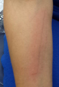 Illustration of Reddish Lines Appear On The Skin Accompanied By Itching?
