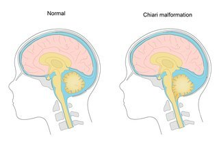 Illustration of How To Deal With Arnold Chairi Malformation?