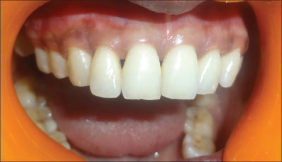 Illustration of How To Overcome The Black Triangle On The Teeth Due To Tenuous Teeth?