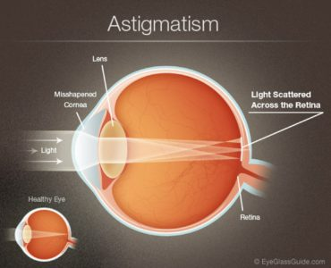 Illustration of Natural Treatment Of Minus And Cylindrical Eyes?