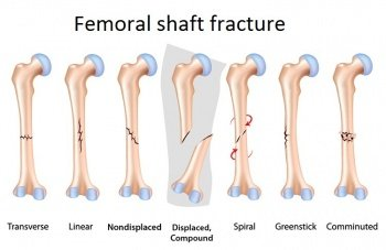Illustration of Relationship Of Fractures With An Abnormal Sitting Position?