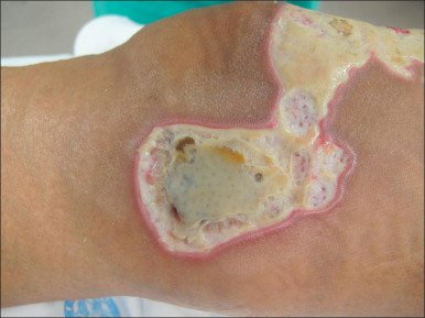 Illustration of Yellow Liquid In Burns After Administration Of Gentamicin?