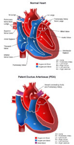 Illustration of The Weight Of Babies With PDA Heart Disease Continues To Decline?