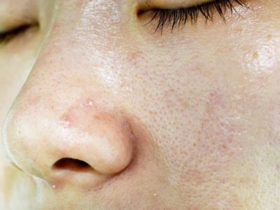 Illustration of The Cause Of Acne Arises After The Use Of Oatmeal Masks?