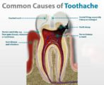 Toothache After Dental Treatment?