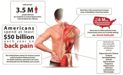 Illustration of The Relationship Of Low Back Pain And Kidney Failure?